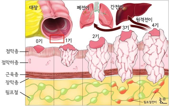 gallbladder symptoms women yeast infection